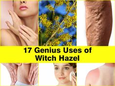 uses-of-witch-hazel - cuts and scrapes, poison ivy, bug bites, sun burn, hemorrhoids, moisturizing the skin, shrink pores,sooth chicken pox, stretch mark and scar tx, under eye bag reduction, facial cleanser, acne
