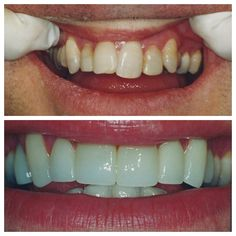 Crowns can make all the difference! Porcelain Crowns, Make All, How To Make, Restorative Dentistry, Smile Teeth, Dental, Restoration, Canning, Healthy