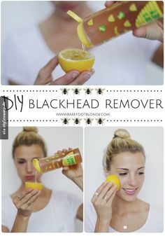 Get rid of blackheads using honey, lemon, and sugar and rubbing on problem areas. Eliminate blackheads with honey, lemon and sugar and rub the problem areas. Beauty Care, Diy Beauty, Beauty Hacks, Face Beauty, Amber Fillerup Clark, Barefoot Blonde, Get Rid Of Blackheads, Pimples, Clear Blackheads