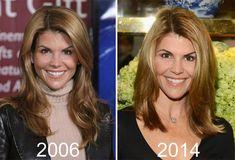 Lori Loughlin: Plastic Surgery Or Good Genes? - http://plasticsurgerytalks.com/lori-loughlin-plastic-surgery/