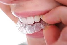 Dental Specialists of New York PC are Certified Invisalign® Providers in Brooklyn, NYC . They are also comfortable, with no metal to cause mouth abrasions during treatment.   Visit Us:- http://www.dentalspecialistsofny.com/ Address:- D & D Building Co LLC, 10th Floor, 150 East 58th Street, New York, NY 10155 USA Phone:- (212) 661-2192 Google Business Page:- https://plus.google.com/107481273765508143060/about