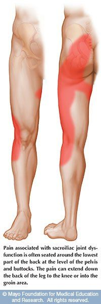 sacroiliac back pain at findmedicalsolutions.com