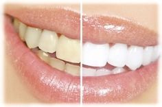 Blanqueamiento Dental Laser Completo. Solicite su Turno al Tel. 4823-6283 www.odontologiagallo.com.ar
