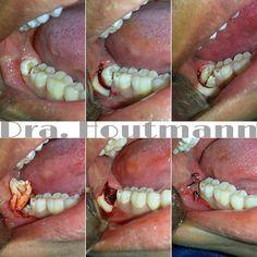 Extracción de tercer molar retenido  . Impacted third molar extraction  . Extração do terceiro molar retido  . #CBMF #OMS #IAOMS #Maxilofacial #Cirugia #odontologia #dentistry #teeth #doubletap #OMFS #selfie #love #science #Repost #lifestyle #Popular #PicOfTheDay #follow #CirugiaBucal #CirugiaOral #OralSurgery #WisdomTooth #Cordales #TercerosMolares #estudiantesdeodontologia #extraccion #usa #brasil #anatomy #health by jannamaxilo Our Oral Surgery Page…