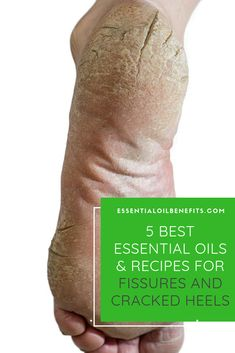 The best overnight treatment for cracked heels! Discover the best essential oils, blends, home remedies and ways to get rid of cracked heels permanently. Essential Oils For Pain, Essential Oils Guide, Ginger Essential Oil, Doterra Essential Oils, Young Living Essential Oils, Essential Oil Blends, Oil For Dry Skin, Oils For Skin, Dry Cracked Heels
