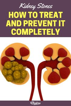 how kidney stones are formed and how to prevent it completely