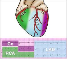 Taking a 12 lead EKG course, and I'm learning so much about reading 12 lead EKGs. :) Circumflex (Cx) - I, aVL - Reads lateral MI's Right Coronary Artery (RCA) - II,. Cath Lab Nurse, Baby Nurse, Cardiac Sonography, Ekg Interpretation, Critical Care Nursing, Cardiac Nursing, Nursing School Notes, Respiratory Therapy, Emergency Medicine
