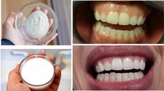 Natural Ways to Whiten Teeth At Home  By this Baking Soda and Lemon Juic...