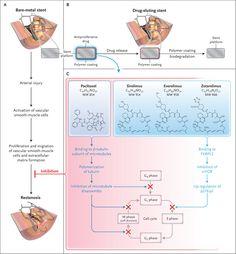 Mechanism of DES