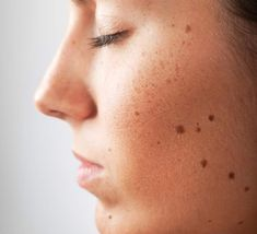 Get rid of your mole issues with our little guide!