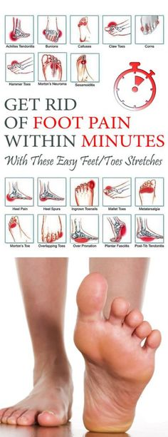 Get Rid of Foot Pain within Minutes with These Easy Feet/Toes Stretches – Care – Skin care , beauty ideas and skin care tips Toe Exercises, Foot Stretches, Foot Remedies, Foot Pain Relief, Heel Pain, Foot Toe, At Home Workout Plan, Feet Care