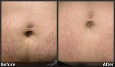 Fraxel laser treatments help remove stretch marks.   www.AboutFaceSkinCare.com
