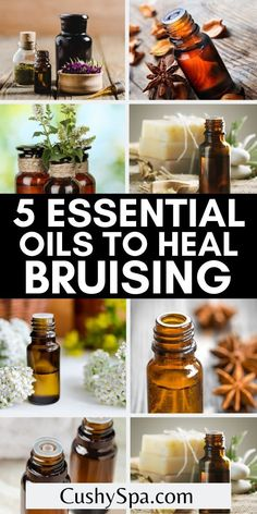 These incredible essential oils can help heal bruises quicker so they are less apparent. Check out these essential oils for bruises and how to use them for your body so you can start healing today. #Bruises #EssentialOils List Of Essential Oils, Essential Oil Uses, Essential Oil Diffuser, Health Tips For Women, Health And Beauty, Health And Wellness, Aromatherapy Benefits, Aromatherapy Recipes, Lemongrass Essential Oil