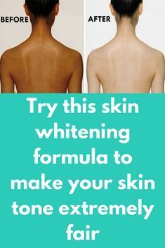 Try this skin whitening formula for 1 month to make your skin tone extremely fair Natural Skin Whitening, Teeth Whitening Remedies, Whitening Soap, Whitening Face, Nail Fungus, Combination Skin, Good Skin, Skin Care Tips, Lighten Skin