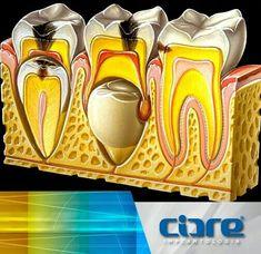 Dental Life, Smile Dental, Dental Art, Medical Dental, Dental Health, Dental Charting, Dental Assistant Study, Dental Images, Dental Posters