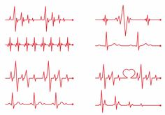 Heartbeat Monitor Graphic Line