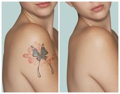 #Dermabrasion for Tattoo Removal Compared with #Laser Tattoo Removal processes