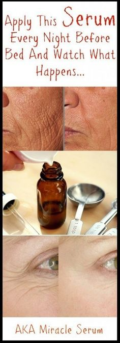 Surely and getting rid of wrinkles is definitely no easy task, but it IS definitely possible! Expensive commercial creams and serums will only break your bank, but this DIY anti aging cream will e…