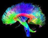 Brain pathways.