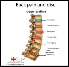 Back Pain and disc