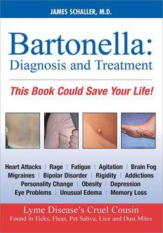 Bartonella Diagnosis and Treatment