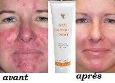 Before & after result pics for Propolis creme with aloe vera & bee propolis for skin conditions such as eczema & psoriasis. This product is available online from www. Forever Aloe, Forever Living Aloe Vera, Forever Living Products, Crème Aloe Vera, Clean9, How To Treat Eczema, Eczema Psoriasis, Psoriasis Symptoms, Psoriasis Remedies