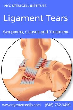 NYC Stem Cells is under construction Ligament Tear, Ligament Injury, Sprain, Torn Ligament, Alternative Health, Alternative Medicine, Health And Nutrition, Health And Wellness, Knee Osteoarthritis