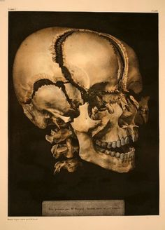 Nicolas Henri Jacob and Jean-Marc Bourgery - Disarticulated skull, from Complete Treatise of Human Anatomy, 1866