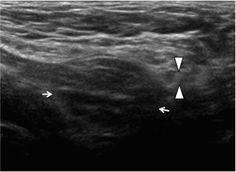 έ ό Inguinal Hernia Ultrasound