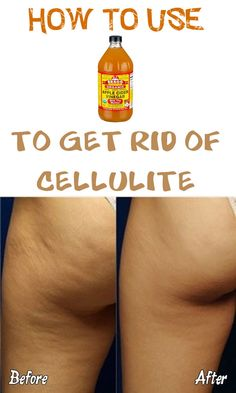 There are many natural remedies for cellulite, apple cider vinegar being one of the most effective ones, because it can be used in much more than one way!