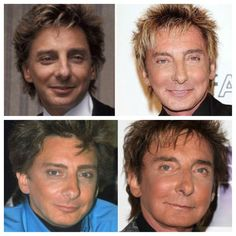 plastic surgery gone wrong | Barry Manilow | Plastic Surgery Gone Wrong