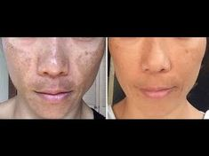 Your face free of blemishes with this homemade and natural recipe! Mary Kay, Crawling In My Skin, Home Remedies, Herbalism, Health Fitness, Skin Care, Youtube, Face, How To Make