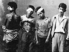 """Thessaly, Greece, 1942-1944. Greek kids joined the resistance against the Axis Triple occupation of the country. They were organized in """"Aetopoula"""" (i.e. Young Eagles) affiliated to EAM (i.e. National Liberation Front). They mostly served carrying messages to resistants. Here, four Aetopoula, show the marks or torture by the German occupation forces at Thessaly, perhaps in 1944. They were released because the Germans couldn't break them & spared their lives."""