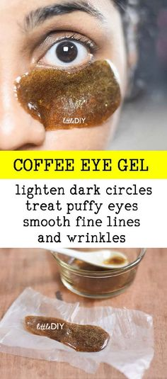 Dark circles are one of the most common skin problems and can be quite stubborn!, Beauty, Dark circles are one of the most common skin problems and can be quite stubborn! Getting rid of them completely isn& technically possible but the. Natural Home Remedies, Natural Healing, Herbal Remedies, Health Remedies, Cold Remedies, Puffy Eye Remedies, Skin Care Home Remedies, Dry Skin Remedies, Beauty Care