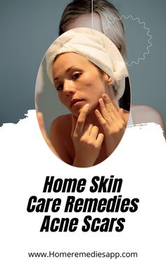 Acne is considered to be a chronic and inflammatory skin condition. Pimples and spots around the face, chest, back, and upper arms are the most visible symptoms of this inflammation...... #skincare #beauty #skincareroutine #makeup #skin #skincareproducts Remedies For Glowing Skin, Home Remedies For Acne, Skin Care Remedies, Acne Remedies, Natural Remedies, Holistic Health Coach, Health And Wellbeing, Pimples On Chin, Homemade Acne Treatment