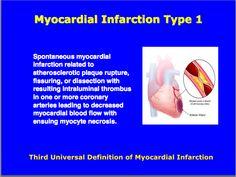 Third universal definition of Myocardial Infarction : Type 1 Cardiovascular Nursing, Myocardial Infarction, Cardiac Nursing, Nursing Profession, Acute Care, Emergency Medicine, Circulatory System, Nurse Stuff, Cardiology