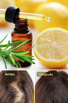 Remedio natural para detener la caída del cabello.
