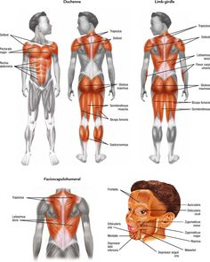 Muscles affected in different types of Muscular Dystrophy Pediatric Physical Therapy, Occupational Therapy, Myotonic Dystrophy, Duchenne Muscular Dystrophy, Ot Therapy, Child Nursing, Muscular Dystrophies, Muscle Protein, Muscle Anatomy