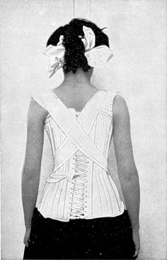 1919, The Van Winkle corset-brace adjusted in a marked case of scolisis, low dorsal to right lumbar to left. Orthopdic and reconstruction surgery