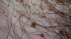 Itching: Pictures, Causes, Diagnosis, Home Remedies & More Itchy Skin Rash, Older Women Hairstyles, Home Remedies, Slime, Pictures, Samsung, Insect Bites, Plant Stem, Kidney Failure