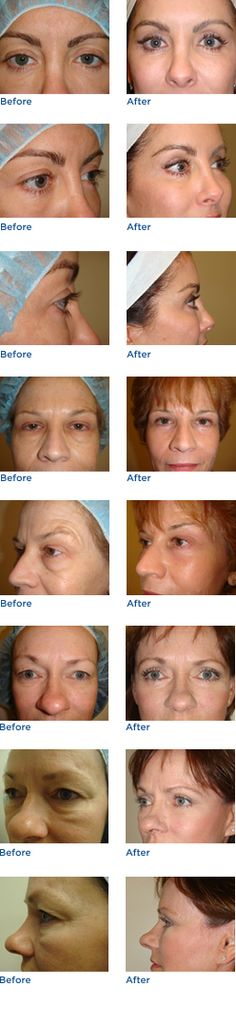 Having this done someday...Austin Eyelid Surgery (Blepharoplasty) Before & After Photos