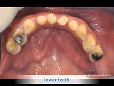 Dental implant treatment - Dental implant treatment replaces missing and damaged teeth. No more dentures. http://www.brightonimplantclinic.co.uk