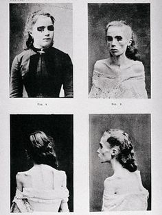 "Even in the 19th century, psychiatrists saw patients with eating disorders. These images, published in Paris in 1892, depict a young woman with ""visceral hysteric anorexia"" who gradually gave up eating until she developed cachexia - a condition where the body is so malnourished it can't be reversed. Back then, anorexia was thought to be a teenage girl disease."