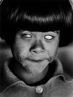 Durísima imagen niño ciego por la explosión nuclear de Hiroshima (1945). Foto de Christer Strömholm