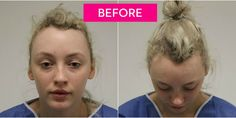 After losing much of her hair due to wearing tight buns, this former dancer got a hair transplant. Prp Hair, Hair Transplant Results, Receding Hair Styles, Androgenetic Alopecia, Reverse Hair Loss, Hair Due, Regrow Hair, Hair Growth Tips, Hair Loss Remedies