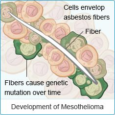 Individuals exposed to asbestos fibers may develop a number of asbestos-related diseases and cancers such as mesothelioma, asbestosis, or lung cancer. Idiopathic Pulmonary Fibrosis, Heart And Lungs, Types Of Cancers, Lung Cancer, Genetics, Vulnerability, The Cure, Teaching, Foods