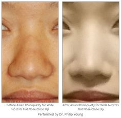 Before & After Asian Rhinoplasty for Wide Nostrils Flat Nose Close Up