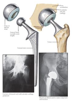 BIPOLAR PROSTHESIS FOR HEMIARTHROPLASTY OF HIP Neck Fracture, Musculoskeletal System, Hip Replacement, Head And Neck, Bipolar, Bipolar Disorder