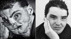 Teile dies auf Ein schockierendes Wunder der Medizin: Das neue Gesicht von Richard Norris