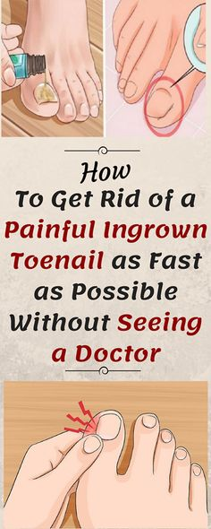 How to Get Rid of a Painful Ingrown Toenail as Fast as Possible Without Seeing a Doctor - Healthy Magic 365